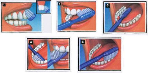 Brossage - Parodontologie