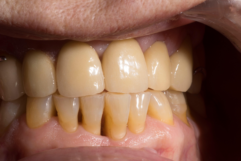Parodontologie à Toulon